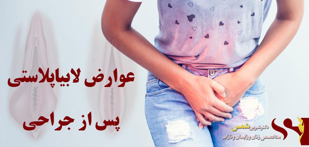 درد واژن بعد از لابیاپلاستی