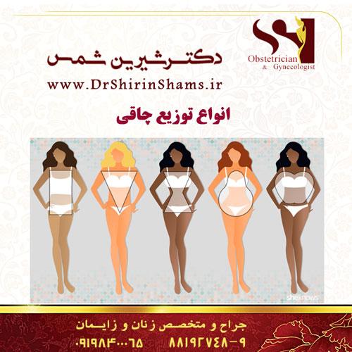 انواع توزیع چاقی